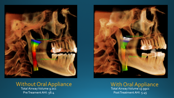 Airway X-Ray without Oral Appliance