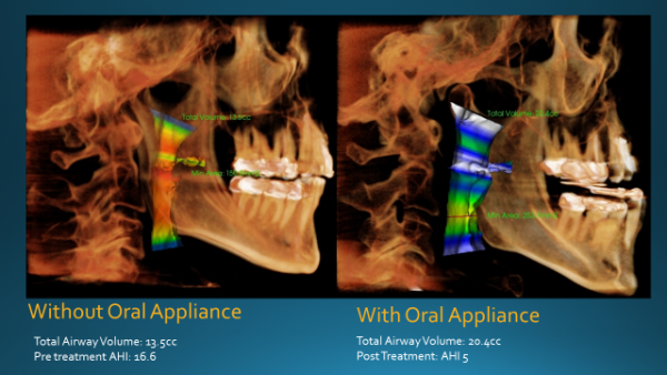 Airway X-Ray with Oral Appliance